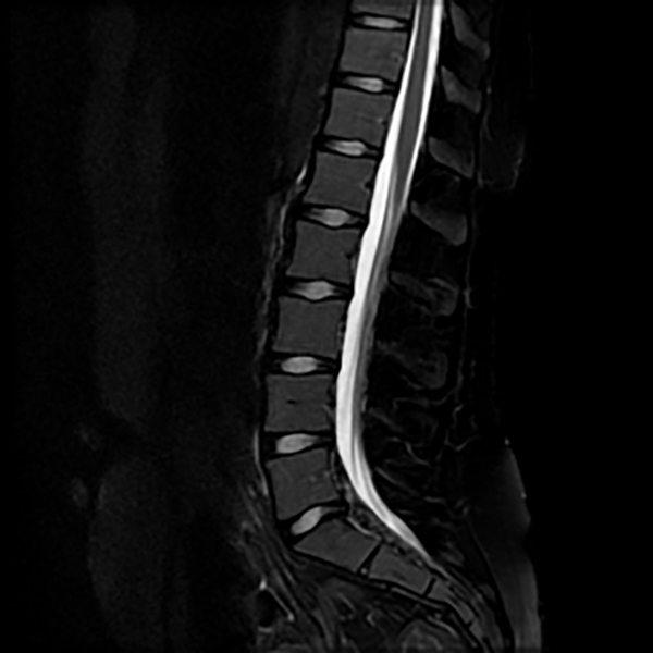 Lumbar MRI Magnetic Resonance Imaging